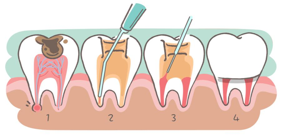 Root Canal Treatment In Pune Best Root Canal Treatment